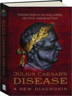 JULIUS CAESAR'S DISEASE: A New Diagnosis