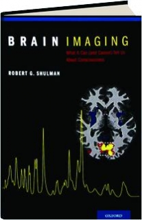 BRAIN IMAGING: What It Can (and Cannot) Tell Us About Consciousness